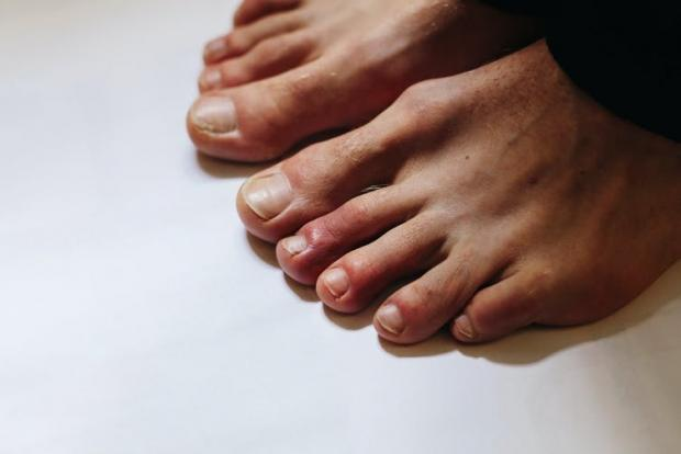 Enfield Independent: The red swelling of these lesions often appears on the top of the toes, close to the nail. Ternavskaia Olga Alibec/Shutterstock