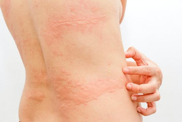 Enfield Independent: Severe urticaria may feel like it is stinging or burning. namtipStudio/Shutterstock